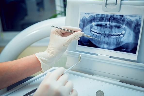 Principales tipos de radiografías dentales